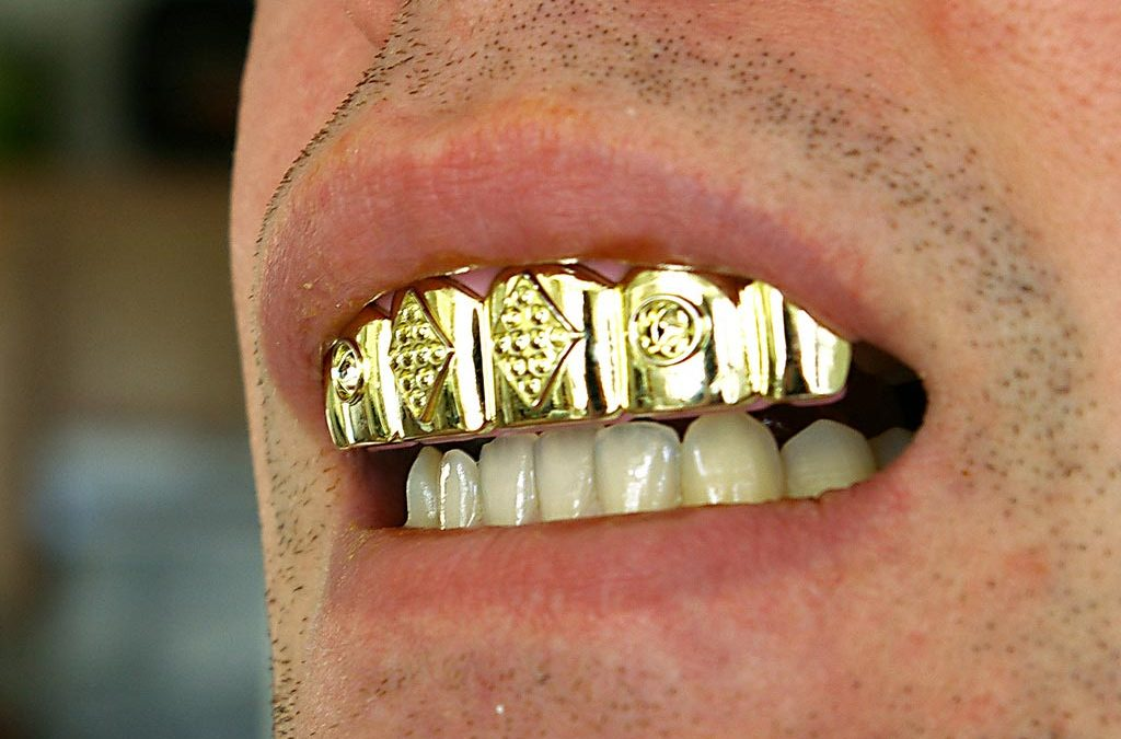 From gold to plastics – A short history of implantology